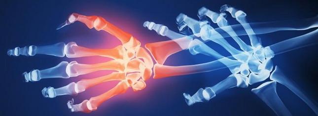 Σε τι οφείλεται η παρουσία της ρευματοειδούς αρθρίτιδας στο σώμα μας